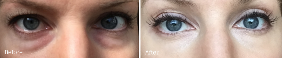 Under-eye fillers done by Dr. Azzi in Jupiter, Florida