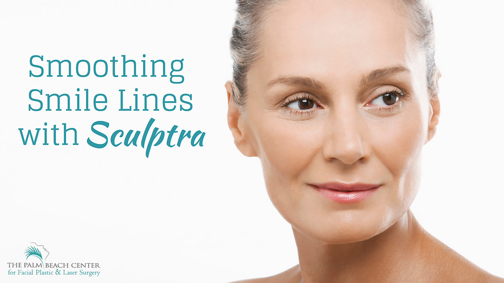 Smoothing Smile Lines with Sculptra