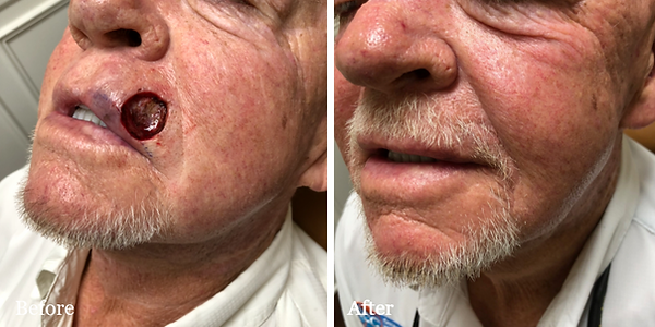 Before and After Mohs Reconstruction on male patient by Dr. Azzi in Jupiter Florida