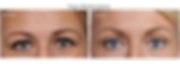 eyelid-lift_edited.png