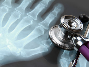 Maximizing Bone Health