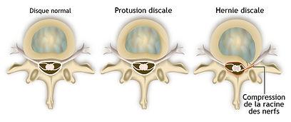 hernie discale opération, soigner hernie discale, chiropraxie