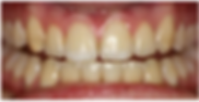 Tooth Whitening Dublin