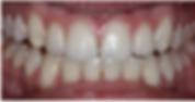 Dublin Tooth Whitening