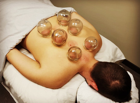 Science of Cupping Therapy