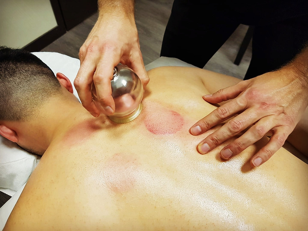 Sliding fire cupping therapy