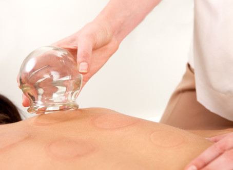 Cupping Therapy: What you need to know