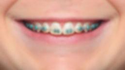 Dental-Braces-Lake-Worth.jpeg