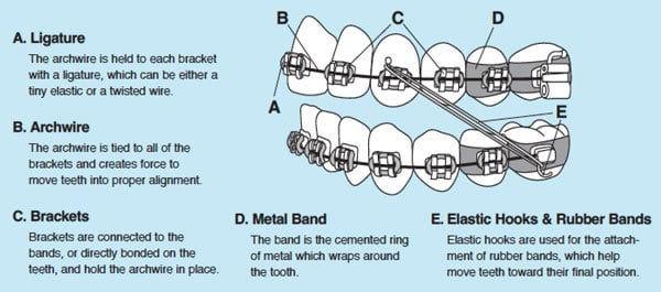 different_parts_of_braces.jpg