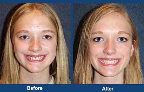 Spacing between the front teeth.