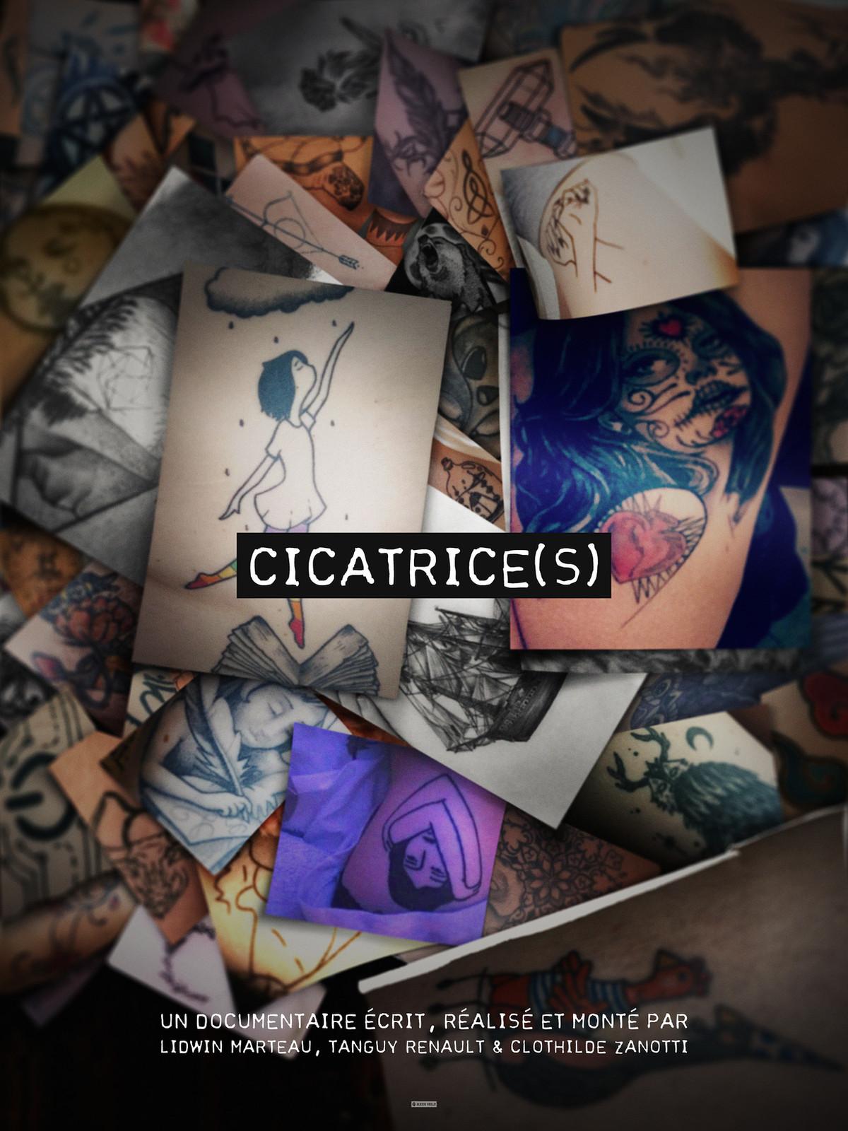 Cicatrice(s)