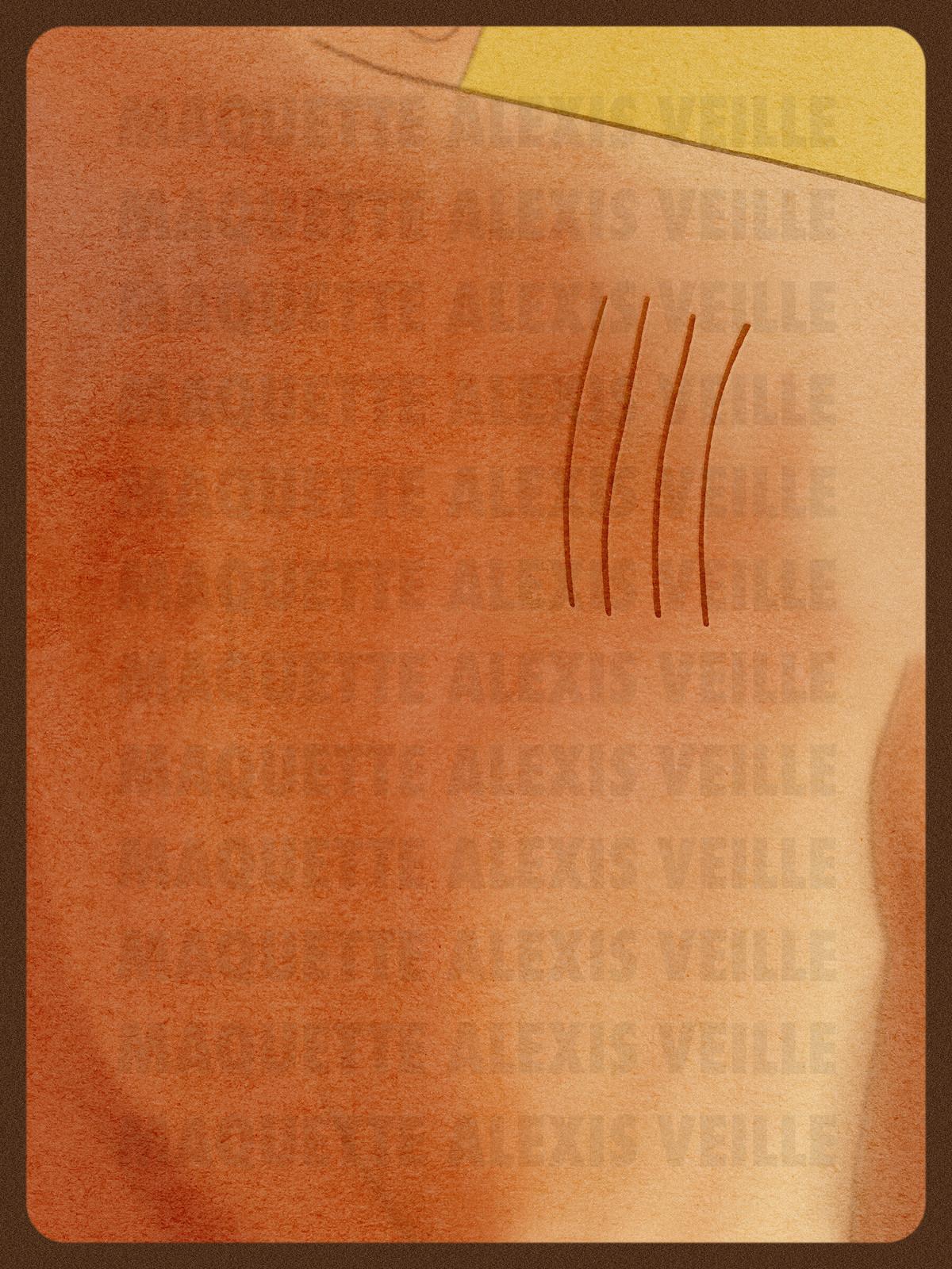 Cicatrice(s) — Alternative