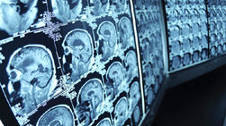 Brain cancer: Study sheds light on unexpected link between glioma and blood sugar