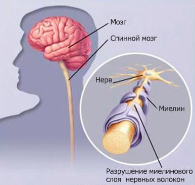 rasseyanniy-skleroz.jpg