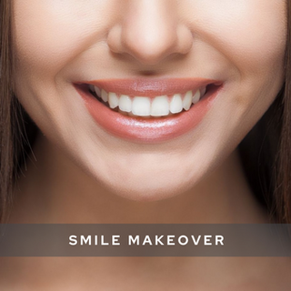 smile makeover.png