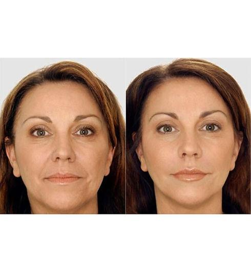 Botox 1.jpg