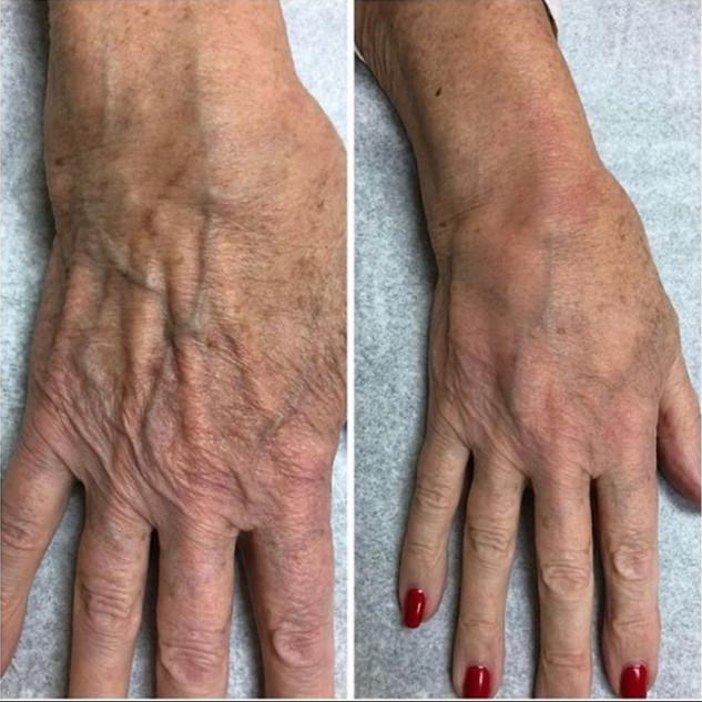 Hands Dr Golberg.jpg