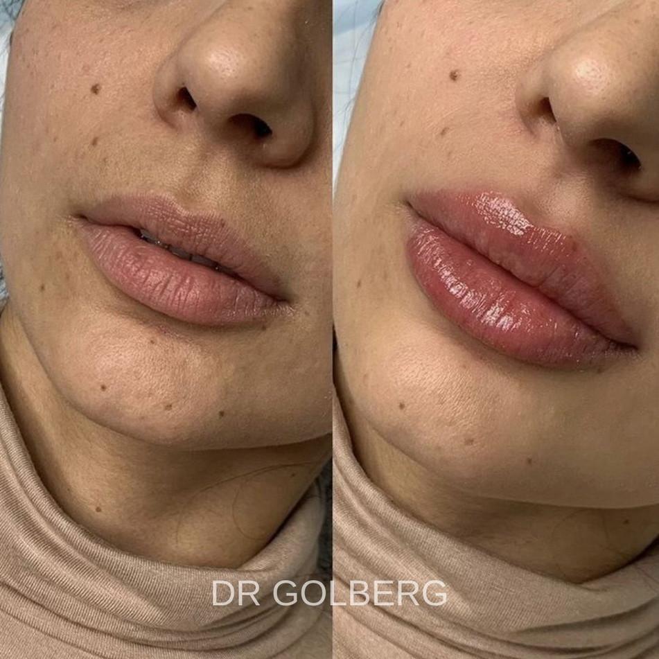 DR GOLBERG LIPS 5.jpg