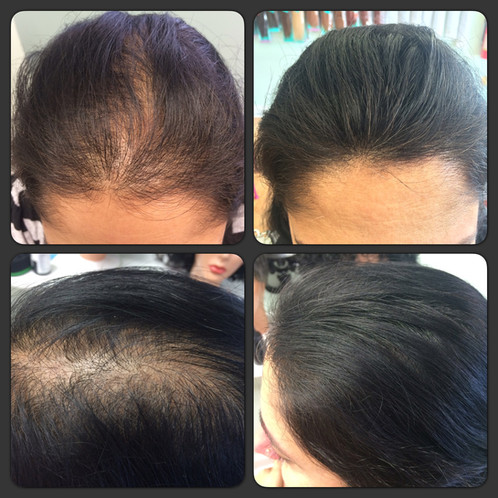 Thickens Thin Hair In Seconds