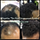 Thumbnail: Meantime Thin Hair Enhancement System