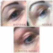 Plasms-Fibroblast-upper-eyelid-500x500.j