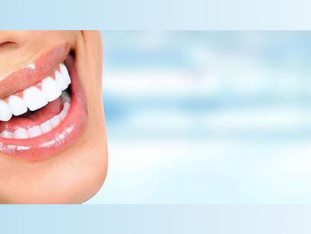 ¿Qué es la placa dental?