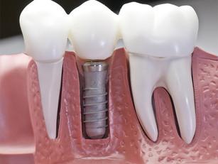 Escovação de implantes pós cirúrgico