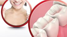 Doença periodontal e obesidade.