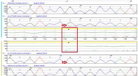 Mutation Surveyor 体細胞変異 ヘテロプラスミー