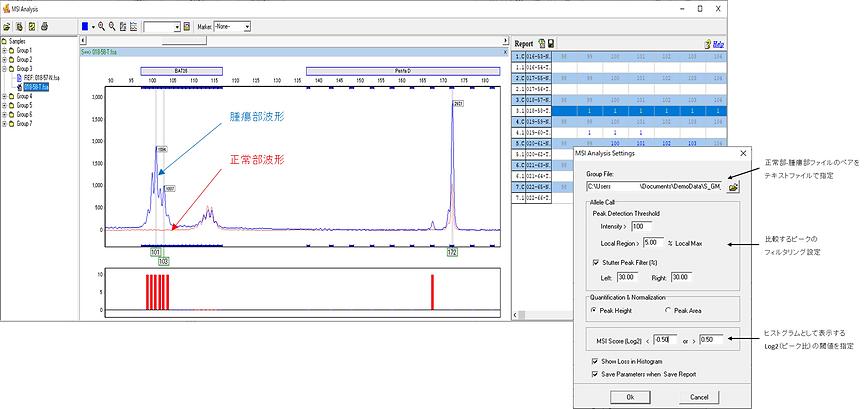 GeneMarkerのMSI解析モジュール。SoftGenetics社製DNAフラグメント解析ソフトウェアGeneMarkerはマイクロサテライト不安定性(MSI)解析用モジュールを搭載しています。