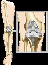 Протеза коляно.png