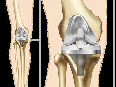 Ендопротезиране на колянна става