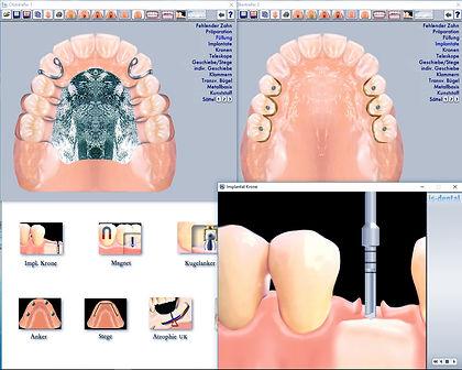 Beratung Zahnersatz
