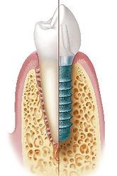 Implantat vs Zahn