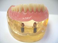 Prothese fixieren mit Implantaten für besseren Halt