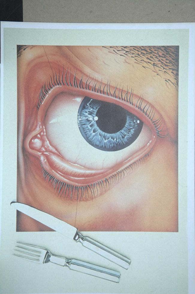 an eye image