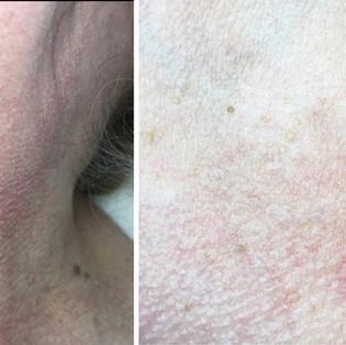Plasma Wave Treatment on skin tags
