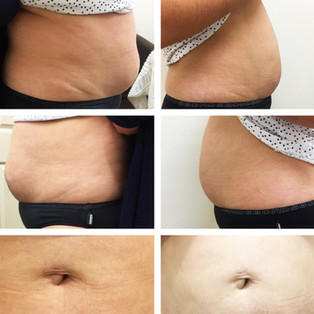 8 Radio Frequency and Cavitation Treatment