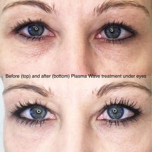 Plasma Wave Treatment