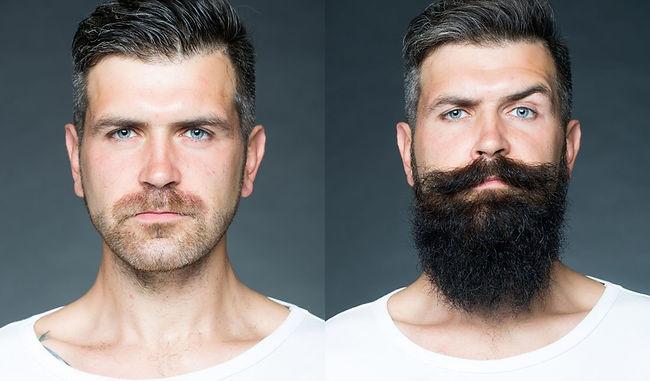 Patchy Beard Help.jpg