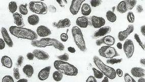 O wielopostaciowej naturze drobnoustrojów, konsekwentnie bojkotowanej przez medycynę głównego nurtu