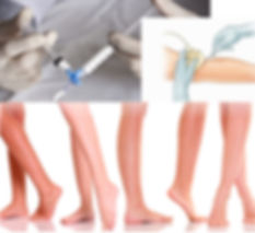 Sclerotherapy PRP Training