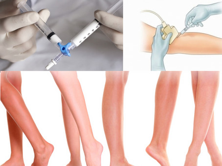 Training and Certification in Sclerotherapy