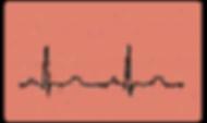 ECG Graph for study