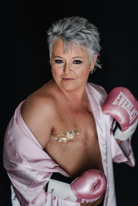 Breast Cancer Survivor.jpg