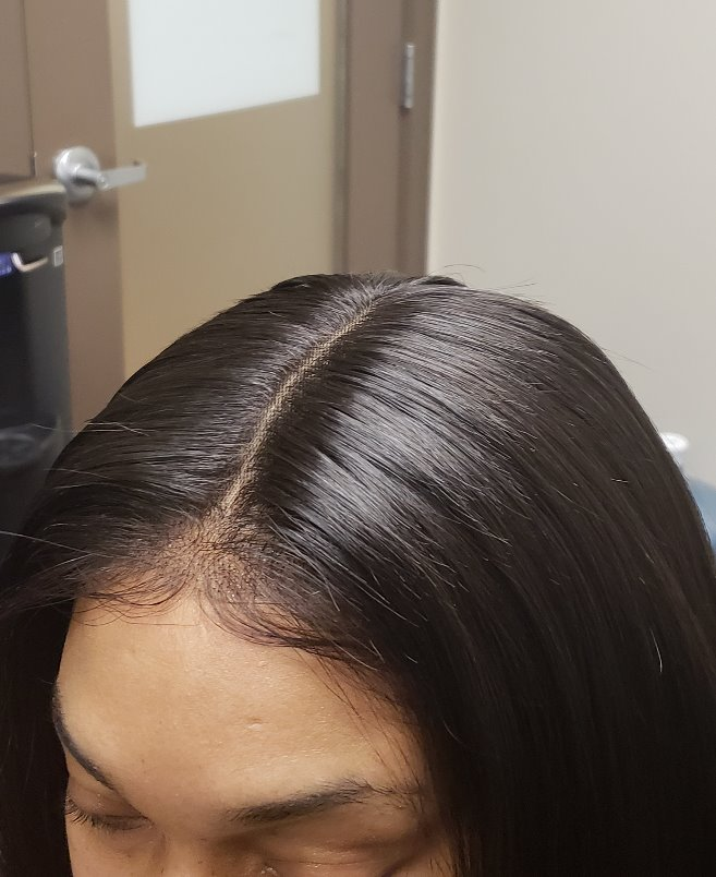 13x6 frontal