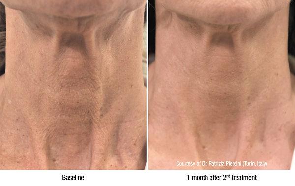 Før og etter av hals.jpg