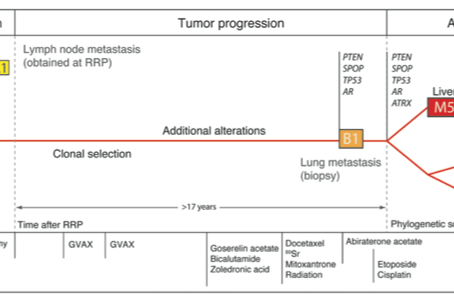 N of 1 Study Insightful to Prostate Cancer Evolution, Therapy?