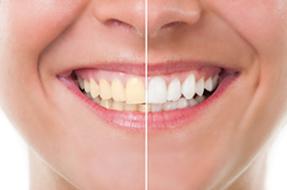 arrowhead_dental1.png