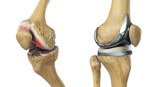 artroplastía_rodilla.jpg